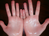 Sweating of the hands in hyperhidrosis