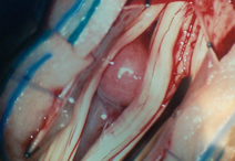 Intraoperative picture of a lumbar tumor intertwined with the nerves before removal.