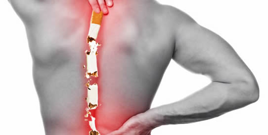 Smoking and Back Pain